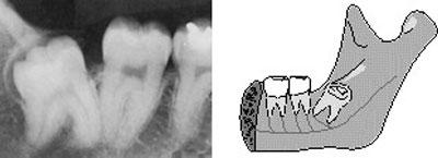 стоматологические услуги удаление зубов