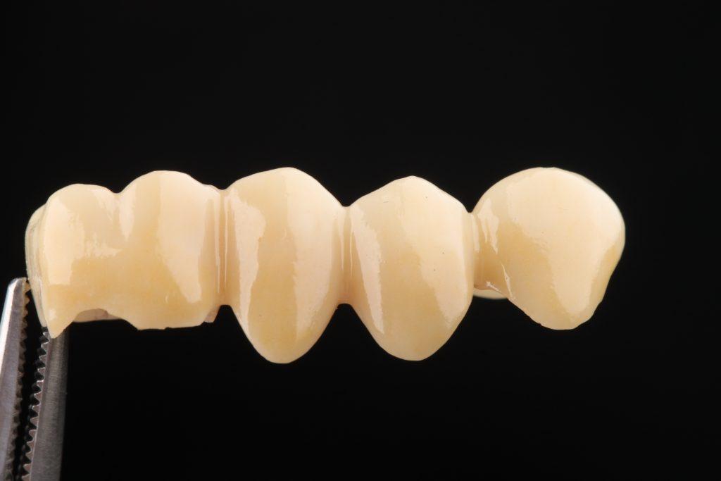 стоматологические клиники работы фрезерный центр цельноциркониевый мост