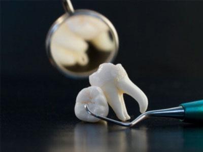 стоматологические услуги зуб удаление
