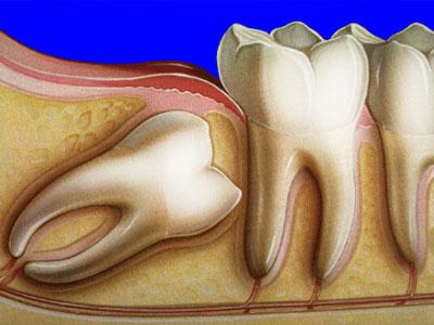 удаление зуба стоматологические услуги