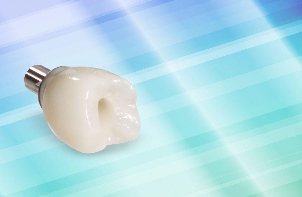 импланты зубов недостатки