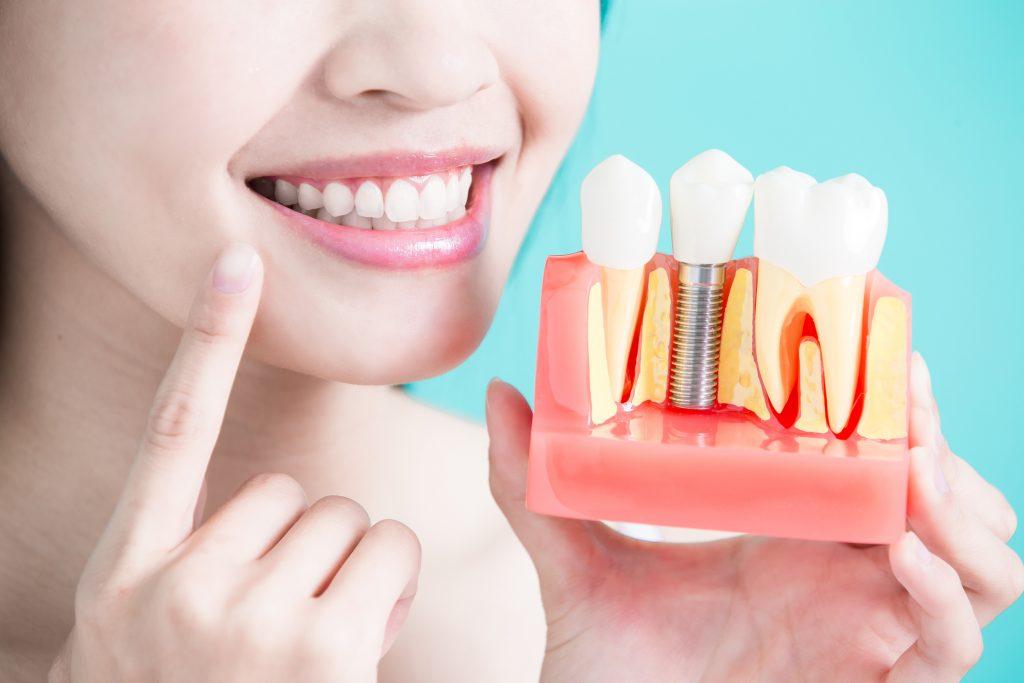 импланты зубов за и против
