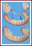 cъемные протезы стоматологические услуги