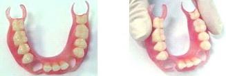 стоматологические услуги нейлоновые протезы