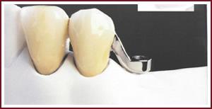 протезы крепления замковые стоматологические услуги