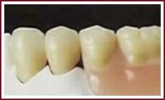 протез крепления стоматологические услуги