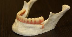 стоматологические услуги - съемные протезы на имплантах