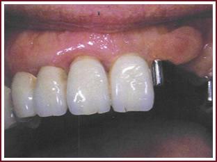 аттачмент протеза стоматологические услуги