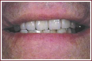 стоматологические услуги аттачмент крепление протеза