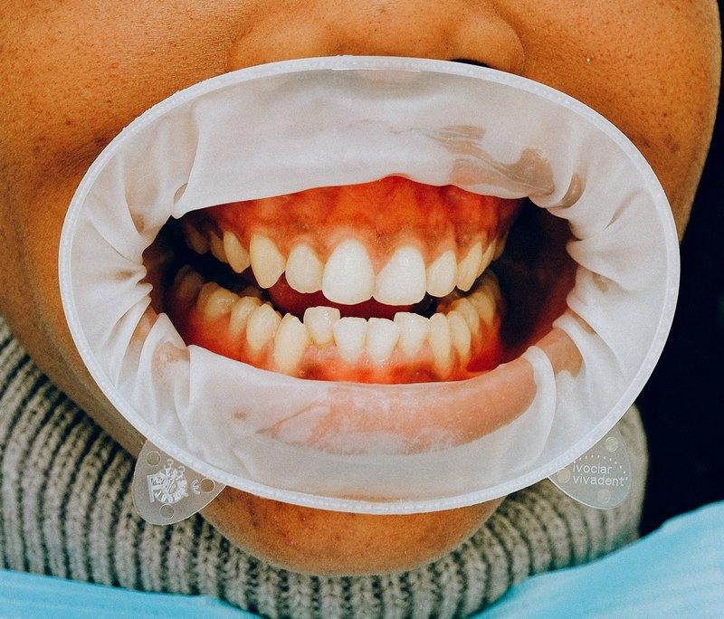 стоматологические услуги недорого